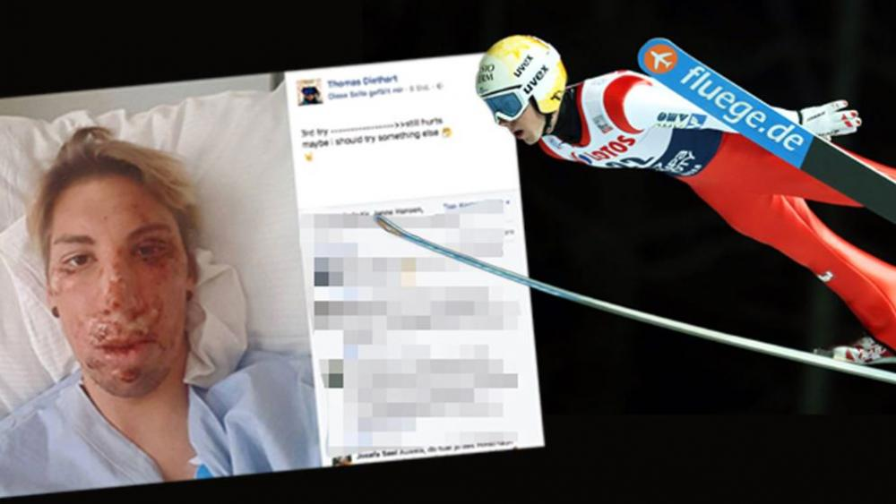 11.jpg - (FOTO) Stravične fotografije ski skakača nakon užasnog pada u Austriji