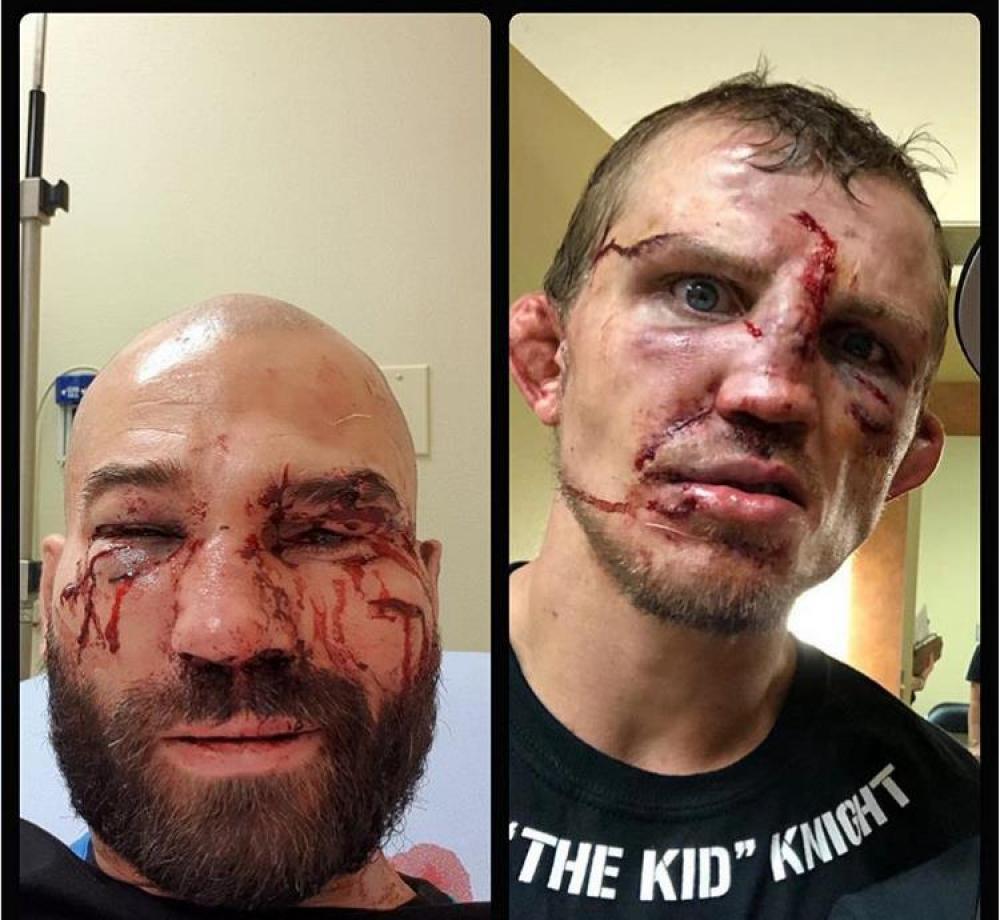 bbb.jpg - (FOTO) Najbrutalniji sport na svijetu: Unakažena lica boraca nakon meča